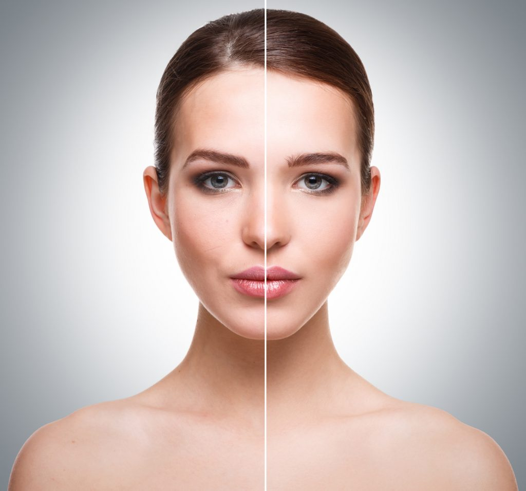Chemical Peels Ageless Integrated Medicine